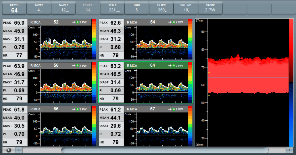 Example of a Flexible TCD Layout showing multi depth spectrum and M Mode