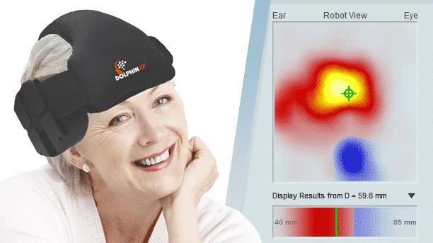 Dolphin/XF Transcranial Doppler Robotic Probe