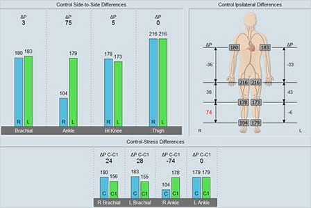 Example of a segmental blood pressures analysis screen