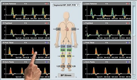 Example of a peripheral vascular summary screen with touch screen support