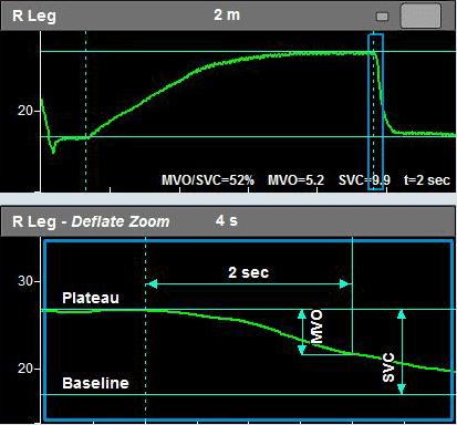 Example of an MVO/SVC measurement