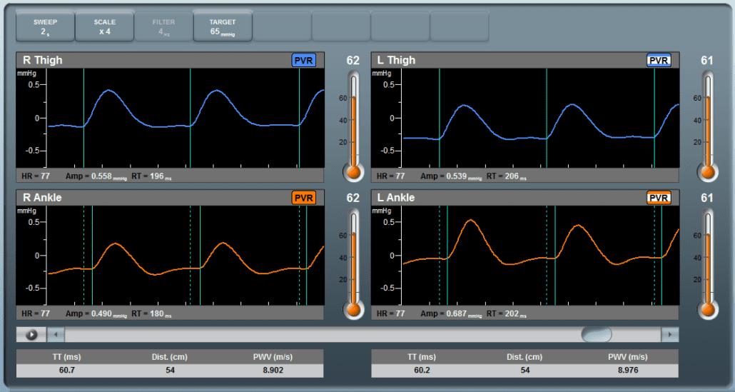 Pulse Wave Velocity (PWV)