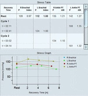 ABI Exercise Stress Test Results