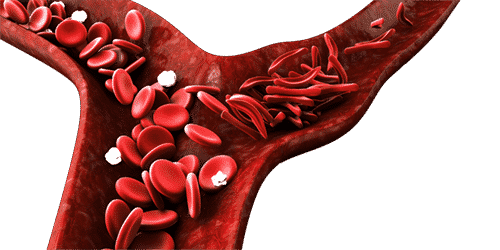 Sickle Cell Disease Test with TCD