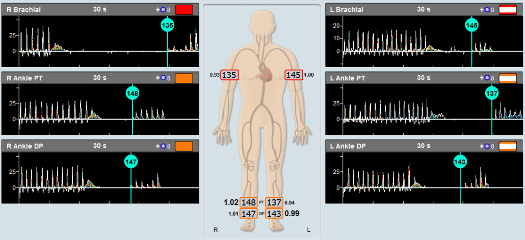 Example of an ABI Assessment using Doppler and pressure cuffs