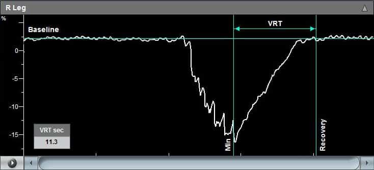 Venous Reflux Test Graph